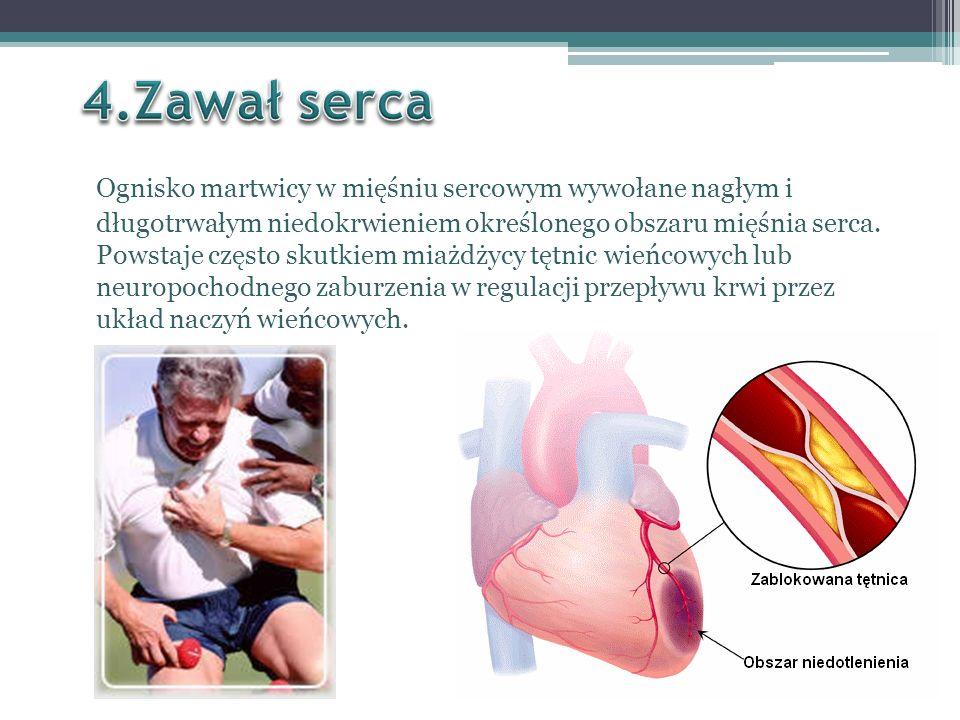 4.Zawał serca