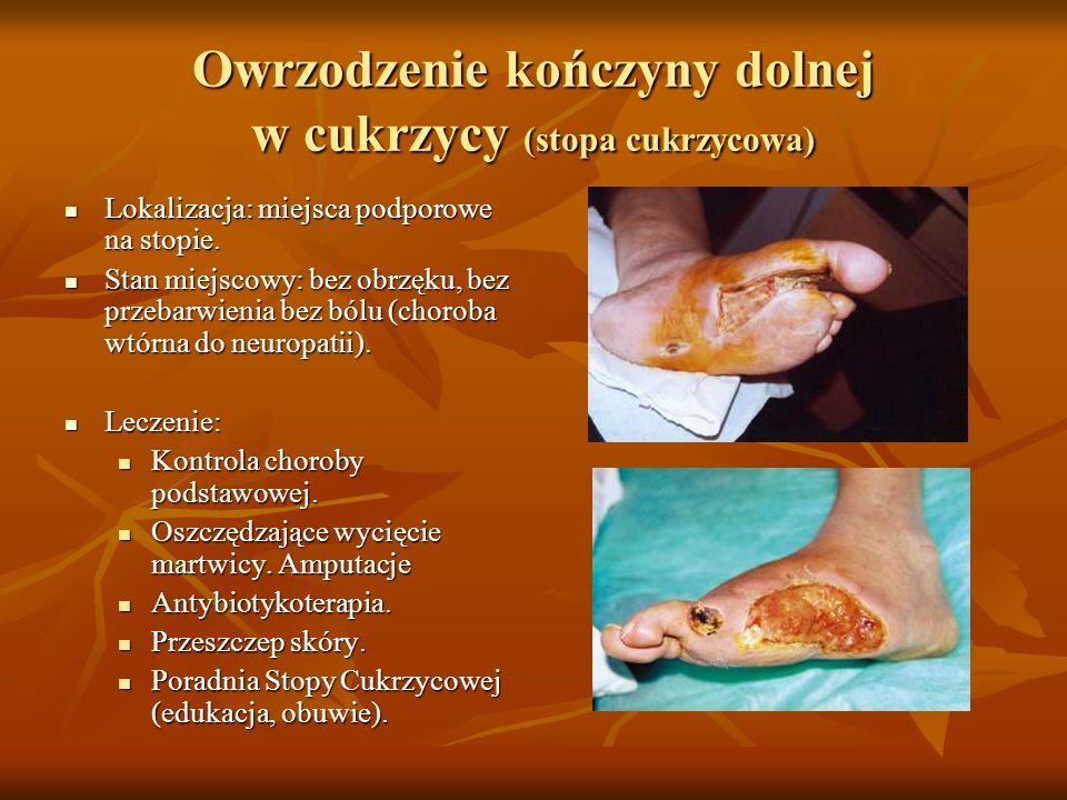 Owrzodzenie kończyny dolnej w cukrzycy (stopa cukrzycowa)