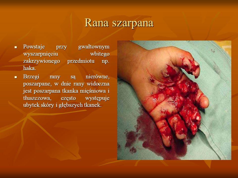 Rana szarpana Powstaje przy gwałtownym wyszarpnięciu wbitego zakrzywionego przedmiotu np. haka.