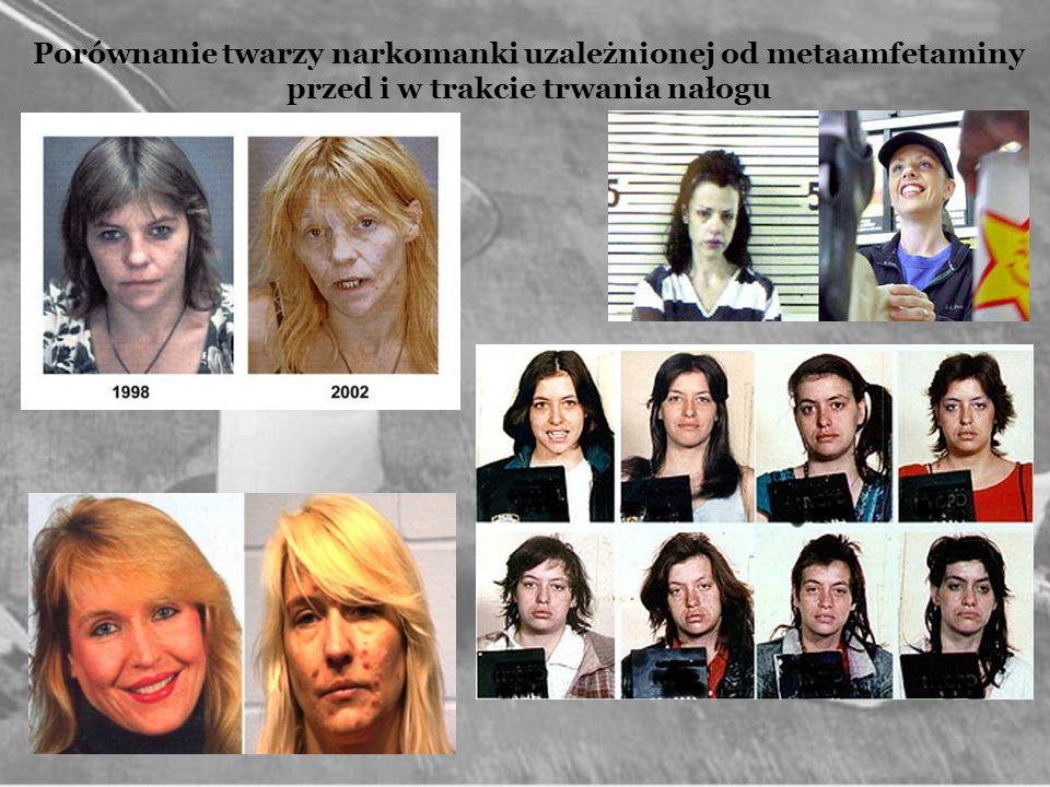 Porównanie twarzy narkomanki uzależnionej od metaamfetaminy przed i w trakcie trwania nałogu