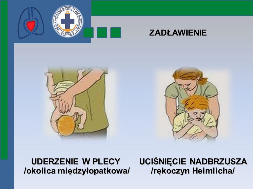 ZADŁAWIENIE UDERZENIE W PLECY /okolica międzyłopatkowa/ UCIŚNIĘCIE NADBRZUSZA /rękoczyn Heimlicha/