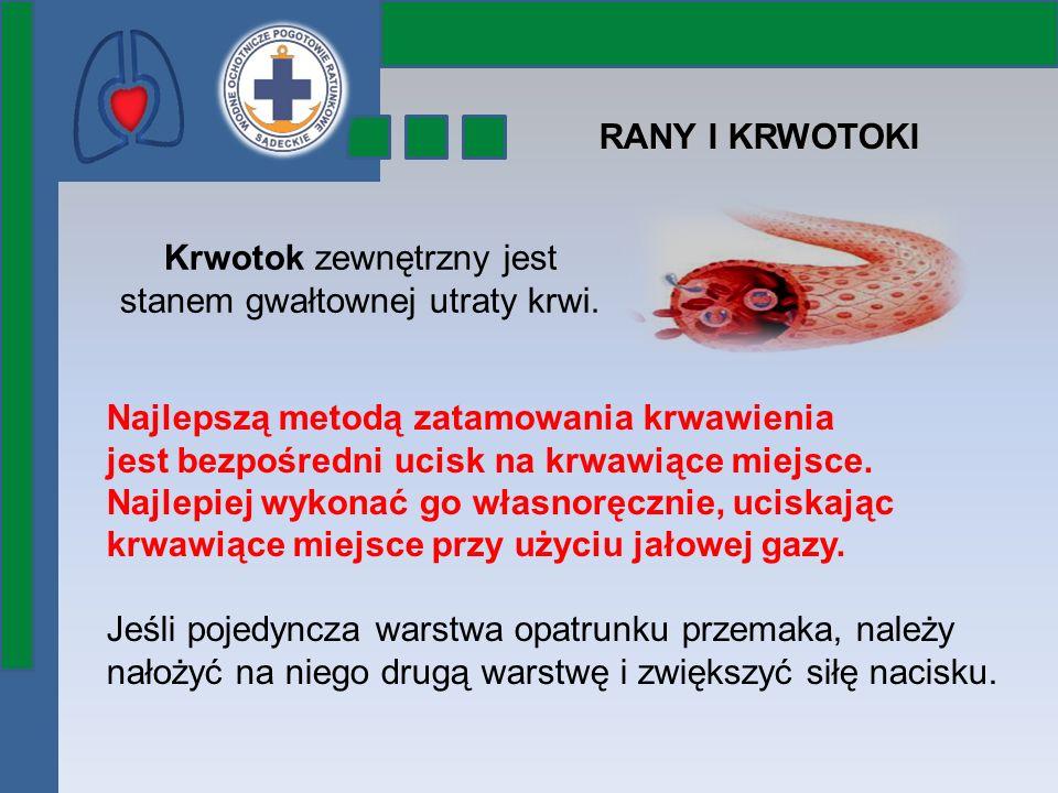 Krwotok zewnętrzny jest stanem gwałtownej utraty krwi.