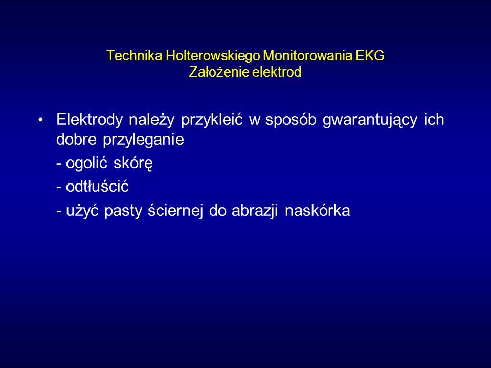 Technika Holterowskiego Monitorowania EKG Założenie elektrod