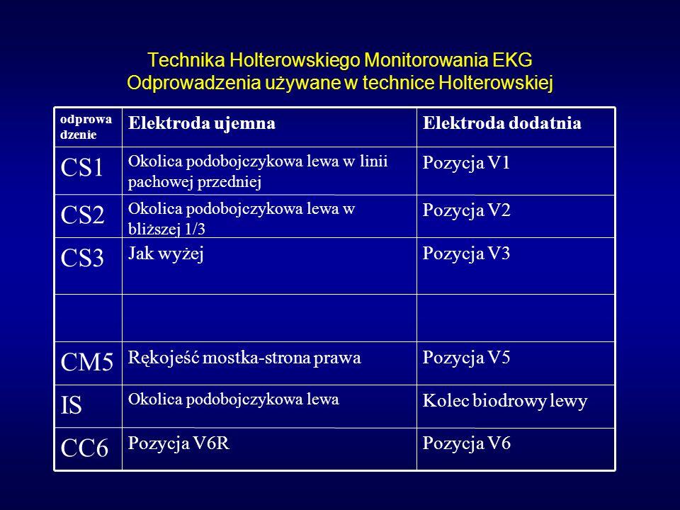 Technika Holterowskiego Monitorowania EKG Odprowadzenia używane w technice Holterowskiej