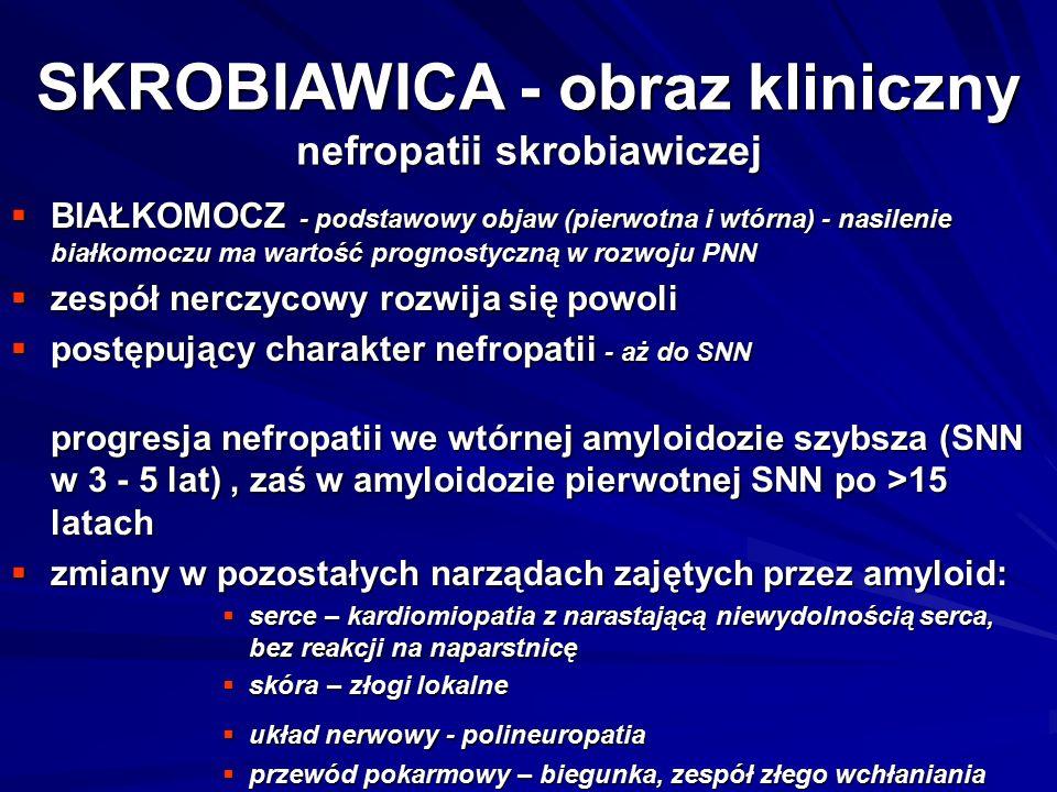 SKROBIAWICA - obraz kliniczny nefropatii skrobiawiczej