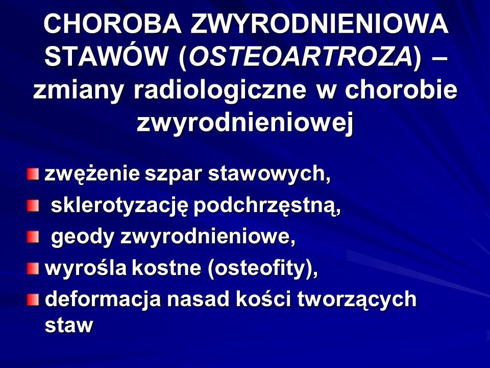 CHOROBA ZWYRODNIENIOWA STAWÓW (OSTEOARTROZA) – zmiany radiologiczne w chorobie zwyrodnieniowej