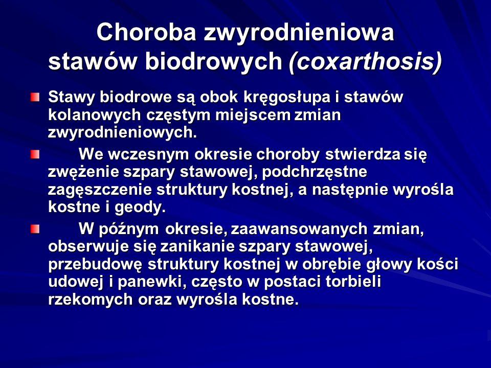 Choroba zwyrodnieniowa stawów biodrowych (coxarthosis)