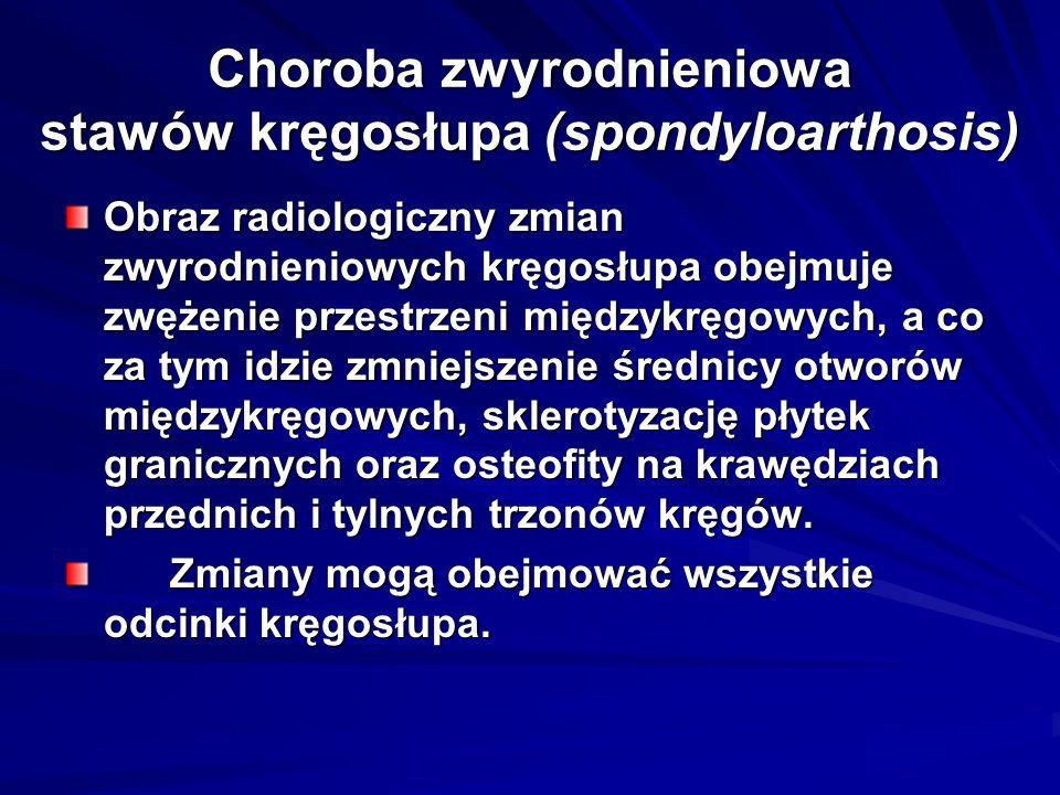 Choroba zwyrodnieniowa stawów kręgosłupa (spondyloarthosis)