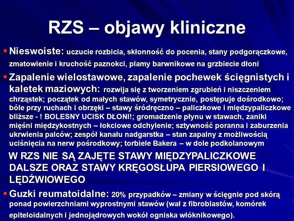 RZS – objawy kliniczne