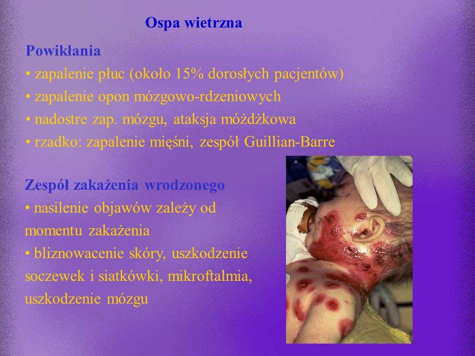 Ospa wietrzna Powikłania. zapalenie płuc (około 15% dorosłych pacjentów) zapalenie opon mózgowo-rdzeniowych.