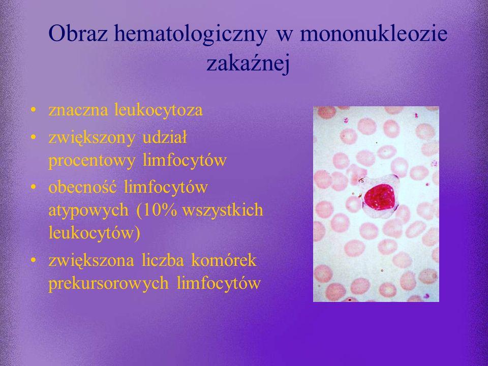 Obraz hematologiczny w mononukleozie zakaźnej