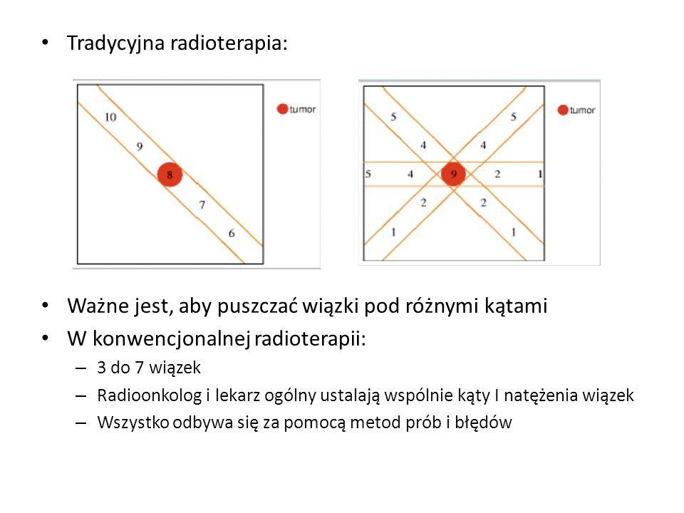Tradycyjna radioterapia:
