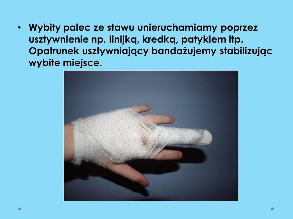 Wybity palec ze stawu unieruchamiamy poprzez usztywnienie np