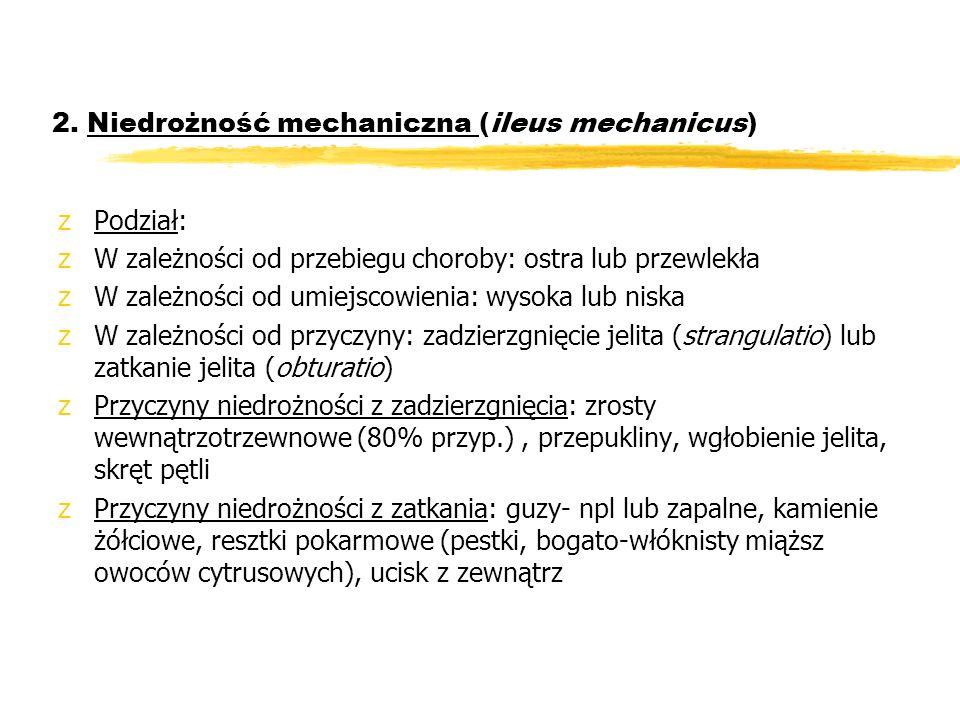 2. Niedrożność mechaniczna (ileus mechanicus)