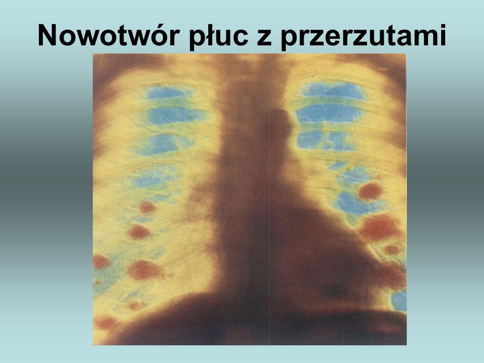 Nowotwór płuc z przerzutami