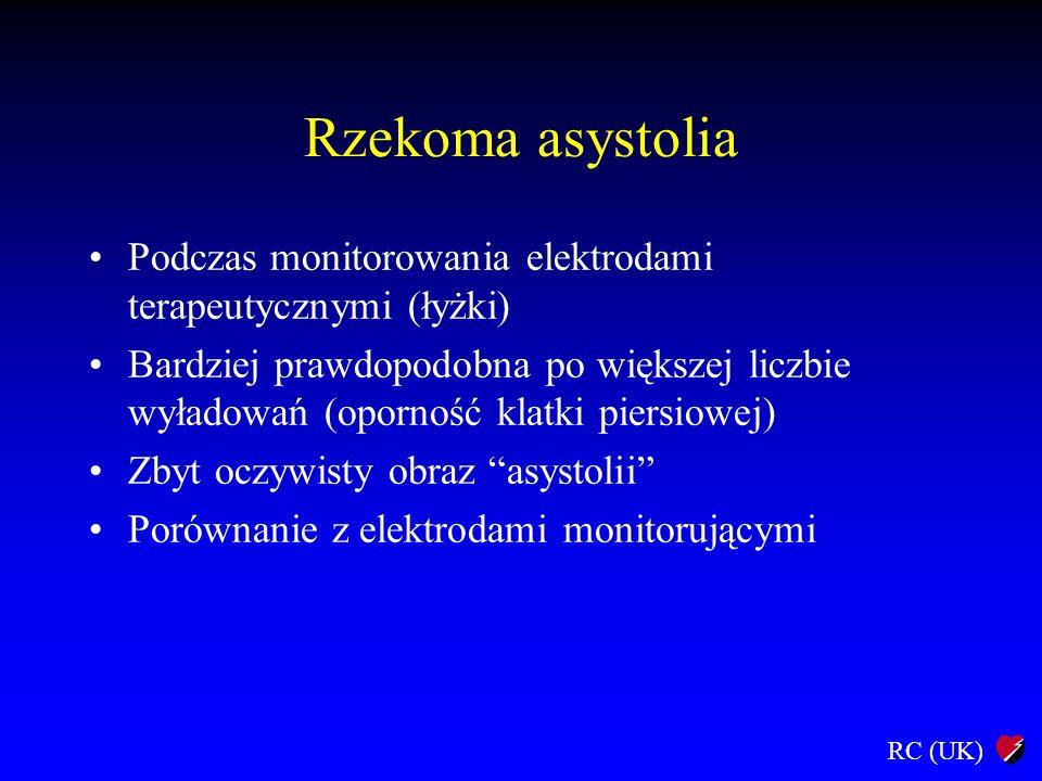 Rzekoma asystolia Podczas monitorowania elektrodami terapeutycznymi (łyżki)