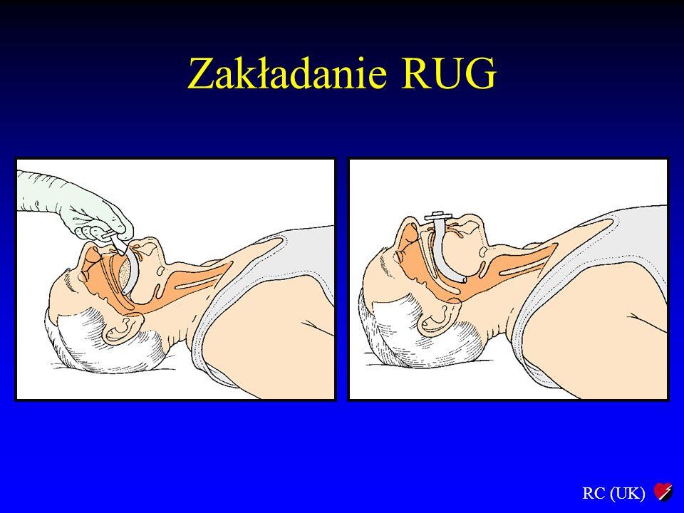 Zakładanie RUG