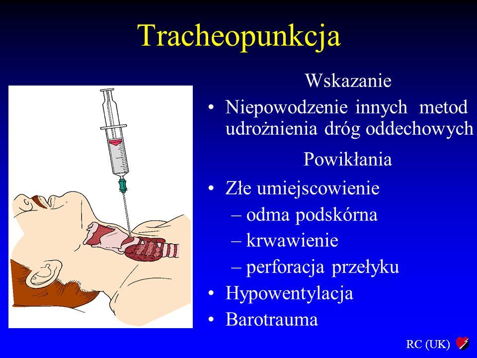 Tracheopunkcja Wskazanie