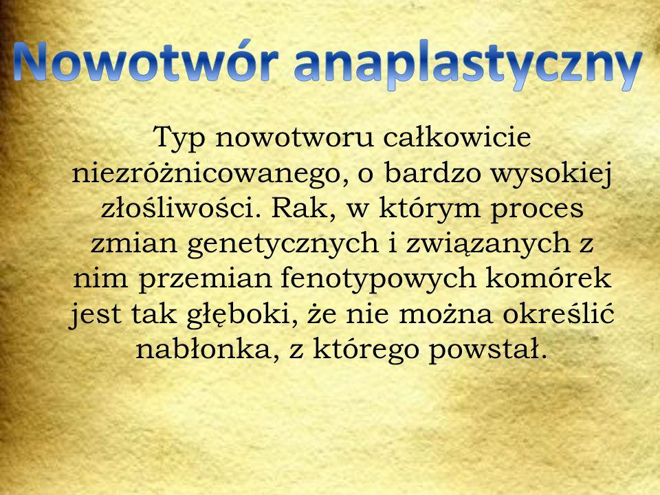Nowotwór anaplastyczny