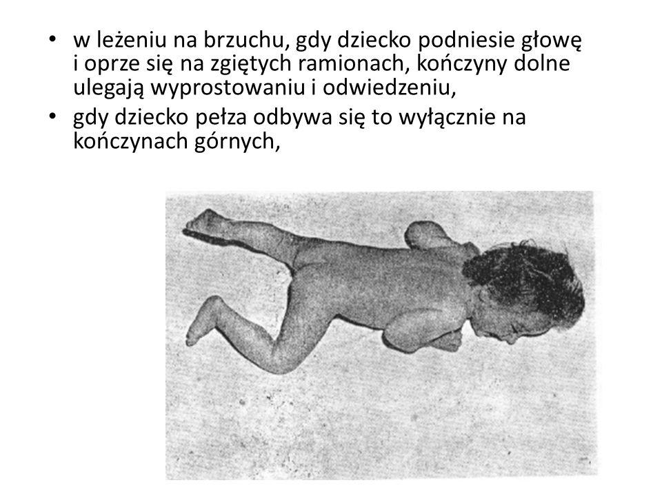 w leżeniu na brzuchu, gdy dziecko podniesie głowę i oprze się na zgiętych ramionach, kończyny dolne ulegają wyprostowaniu i odwiedzeniu,