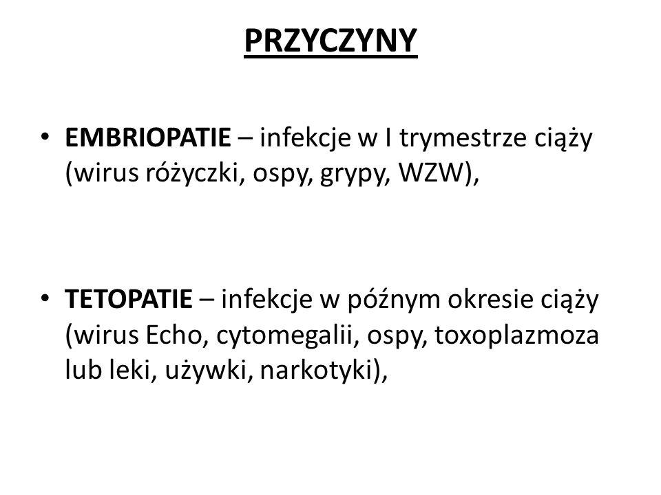 PRZYCZYNY EMBRIOPATIE – infekcje w I trymestrze ciąży (wirus różyczki, ospy, grypy, WZW),