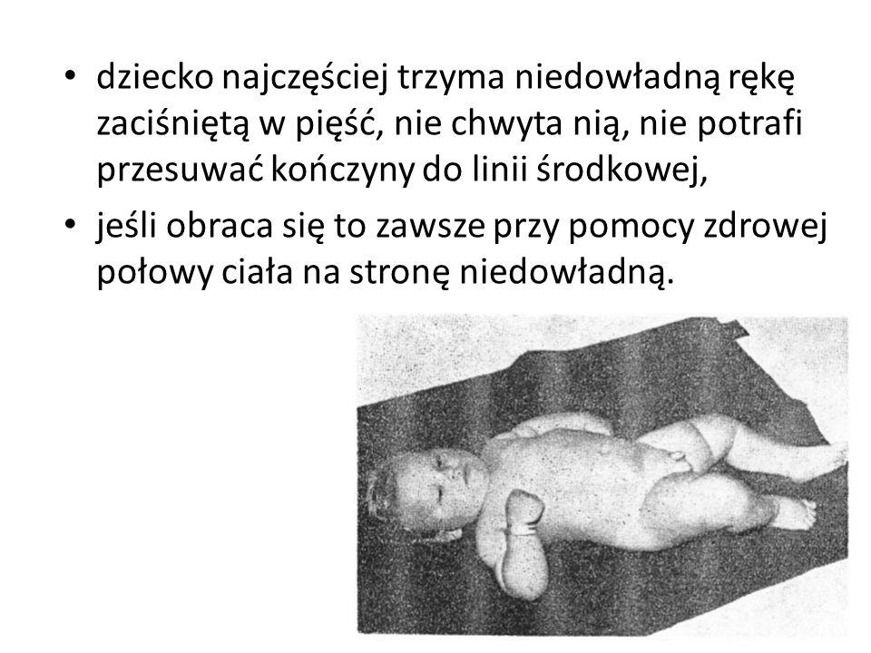 dziecko najczęściej trzyma niedowładną rękę zaciśniętą w pięść, nie chwyta nią, nie potrafi przesuwać kończyny do linii środkowej,