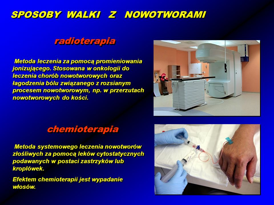 radioterapia chemioterapia