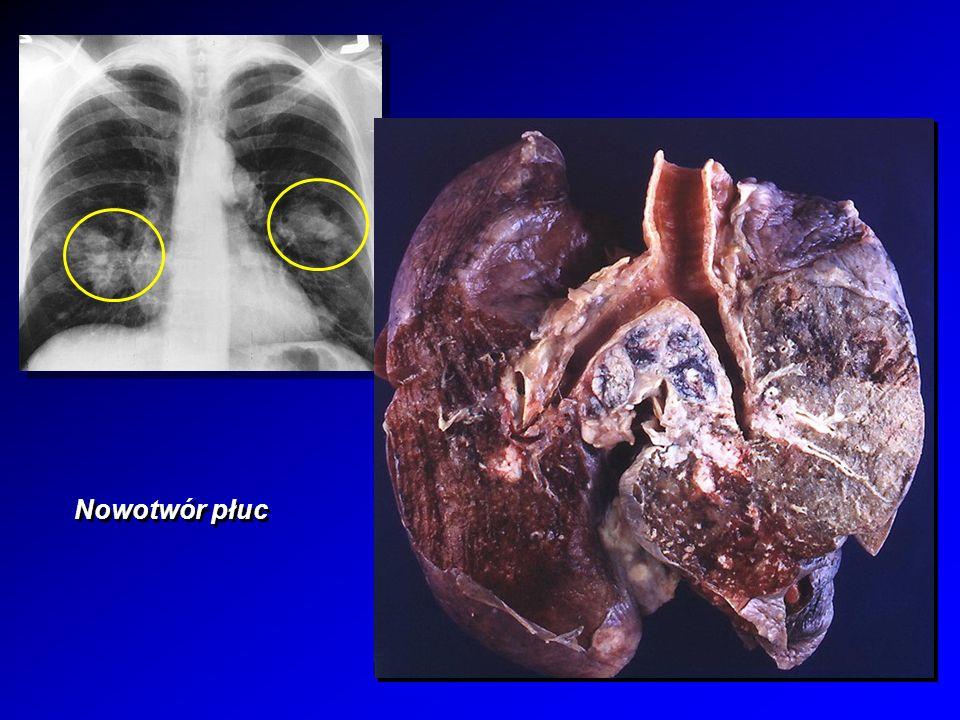 Nowotwór płuc