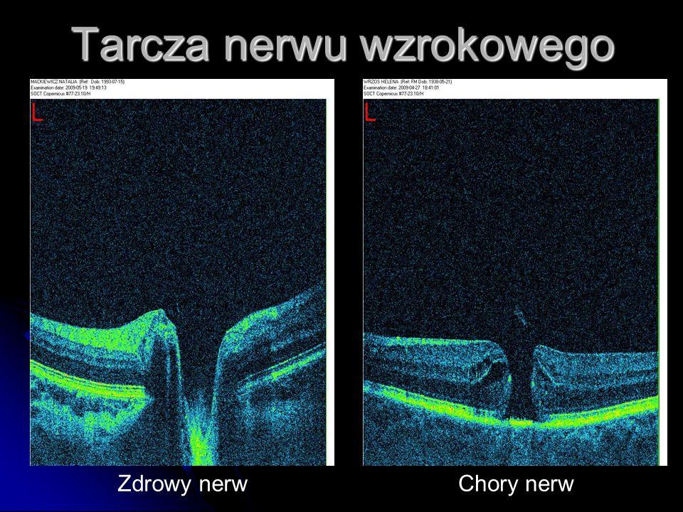 Tarcza nerwu wzrokowego