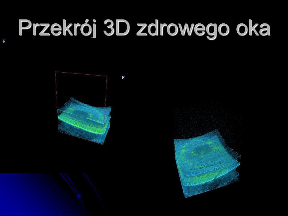 Przekrój 3D zdrowego oka