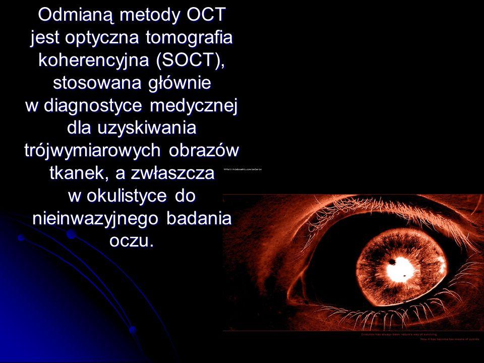 Odmianą metody OCT jest optyczna tomografia koherencyjna (SOCT), stosowana głównie w diagnostyce medycznej dla uzyskiwania trójwymiarowych obrazów tkanek, a zwłaszcza w okulistyce do nieinwazyjnego badania oczu.