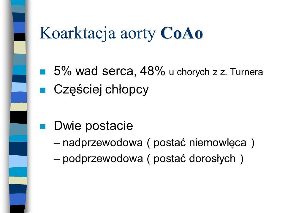 Koarktacja aorty CoAo 5% wad serca, 48% u chorych z z. Turnera