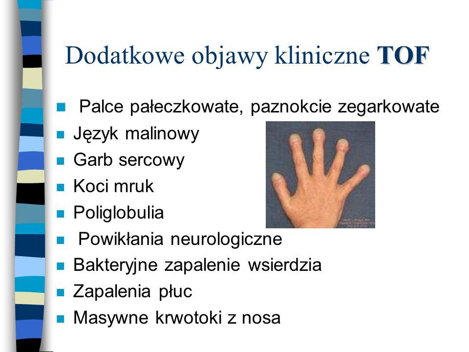 Dodatkowe objawy kliniczne TOF