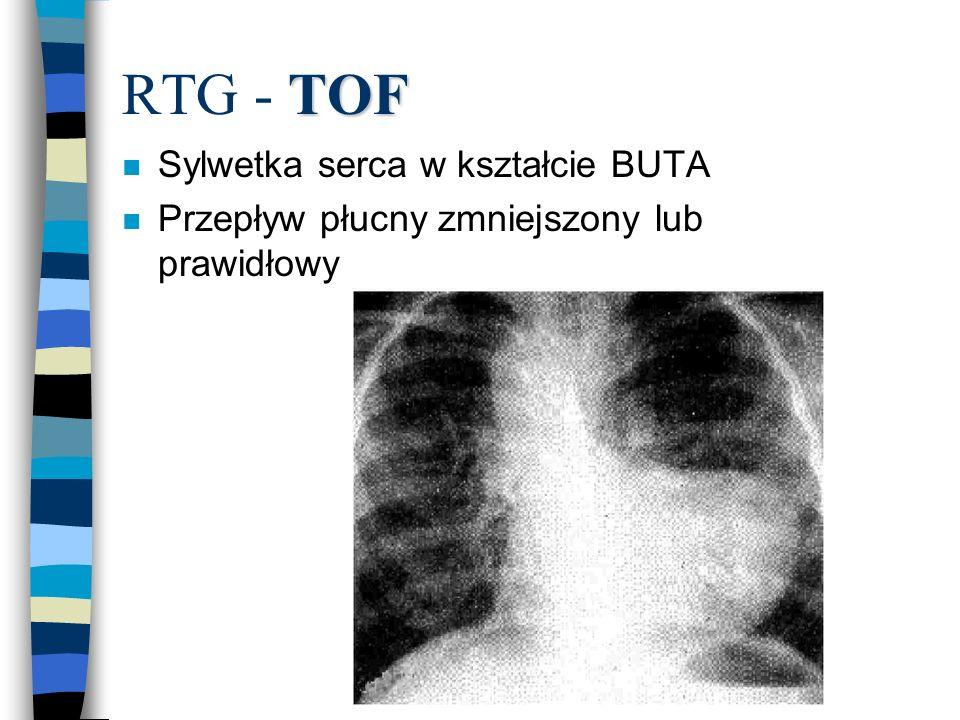 RTG - TOF Sylwetka serca w kształcie BUTA