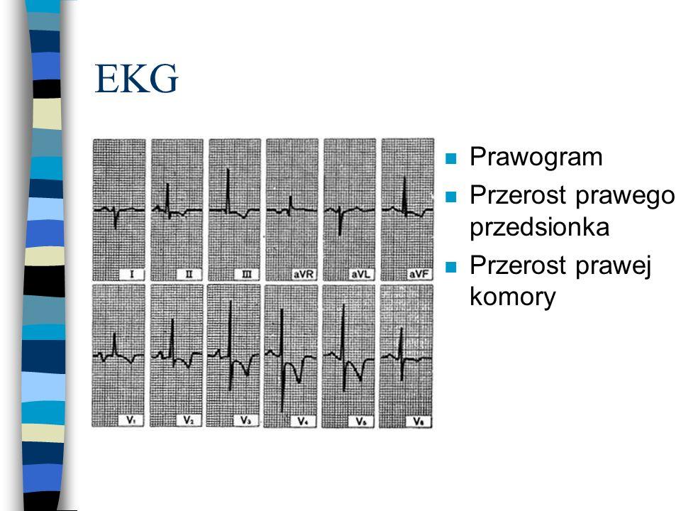 EKG Prawogram Przerost prawego przedsionka Przerost prawej komory