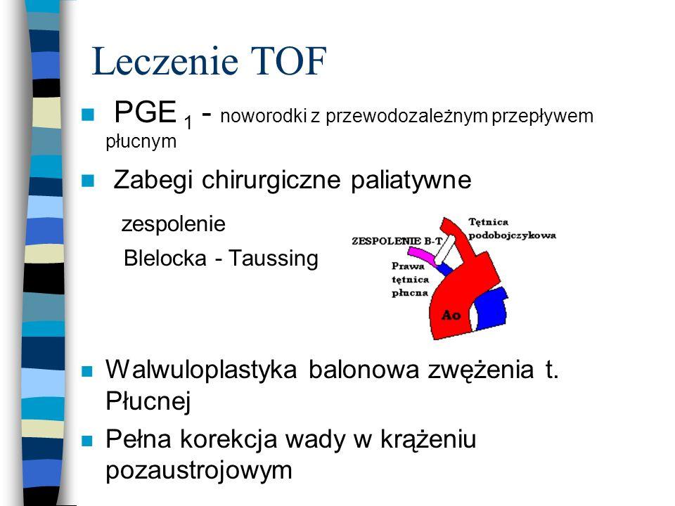 Leczenie TOF PGE 1 - noworodki z przewodozależnym przepływem płucnym