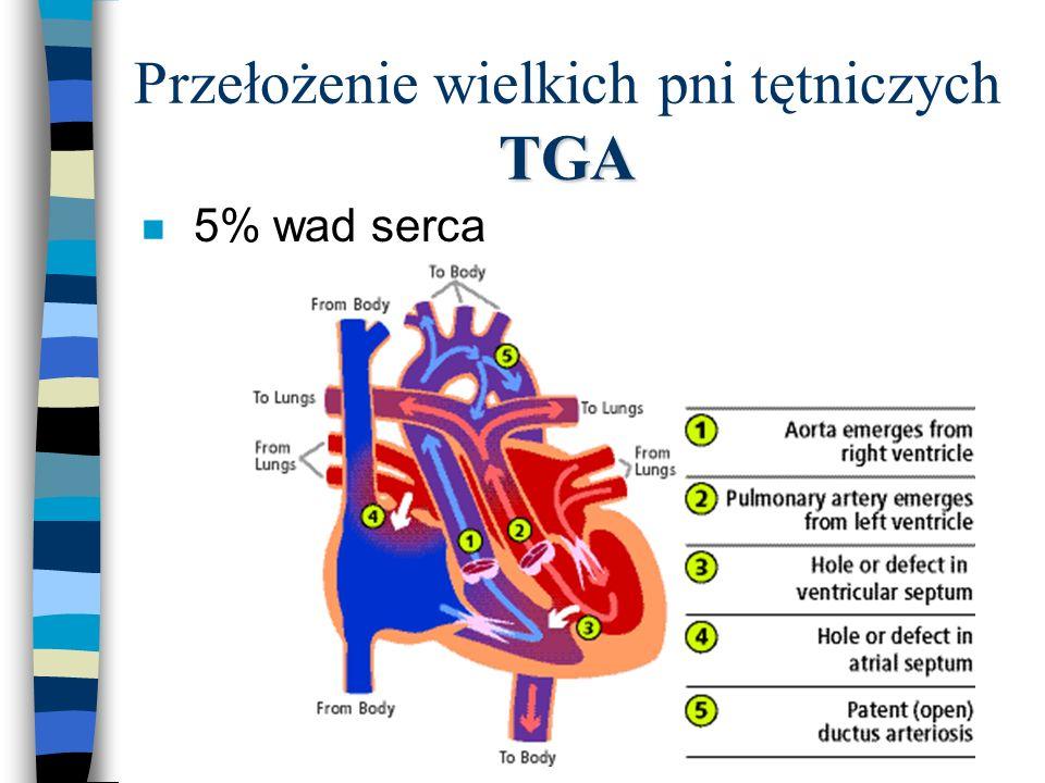 Przełożenie wielkich pni tętniczych TGA