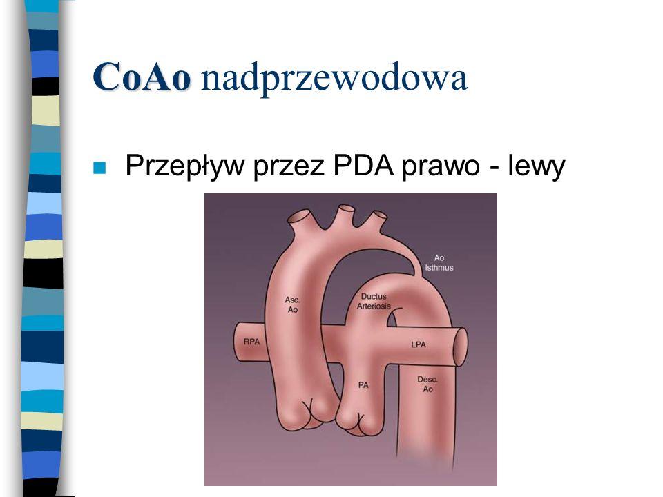 CoAo nadprzewodowa Przepływ przez PDA prawo - lewy