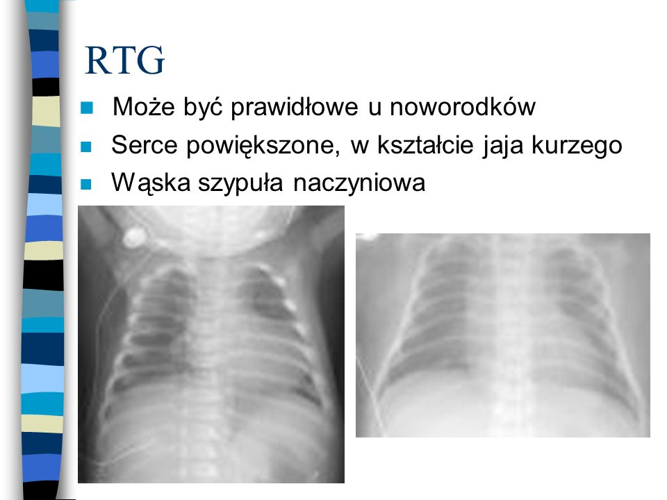 RTG Może być prawidłowe u noworodków