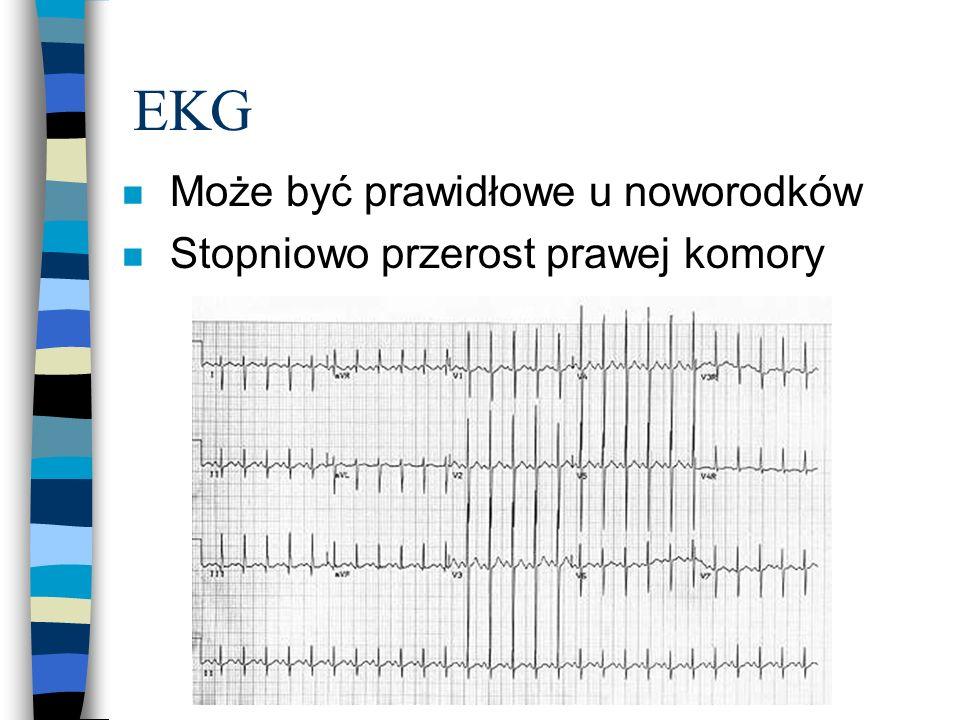 EKG Może być prawidłowe u noworodków Stopniowo przerost prawej komory