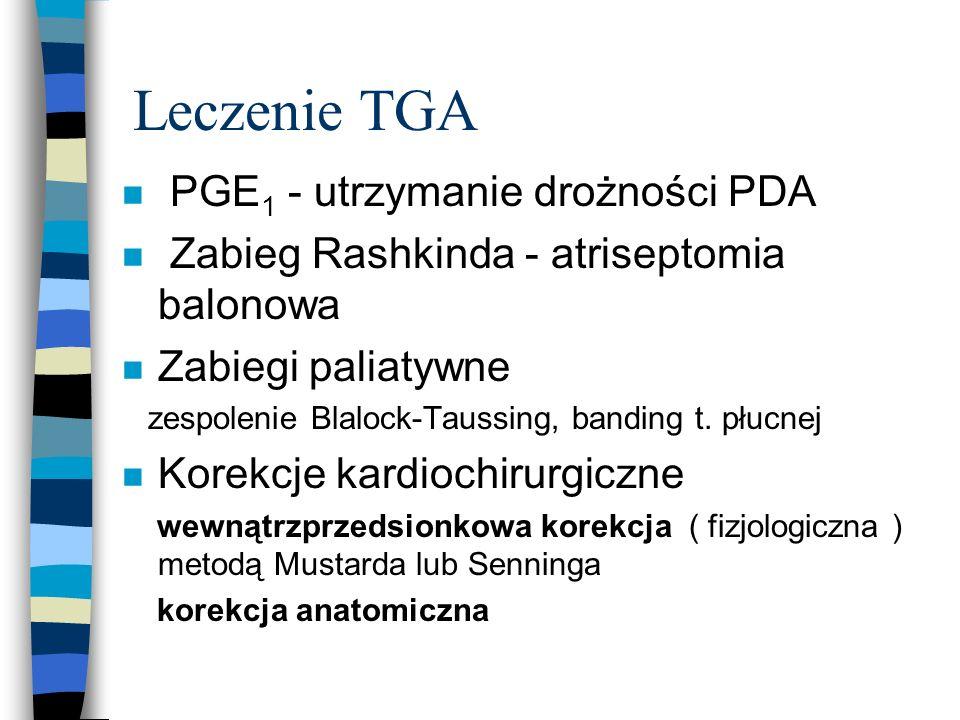 Leczenie TGA PGE1 - utrzymanie drożności PDA