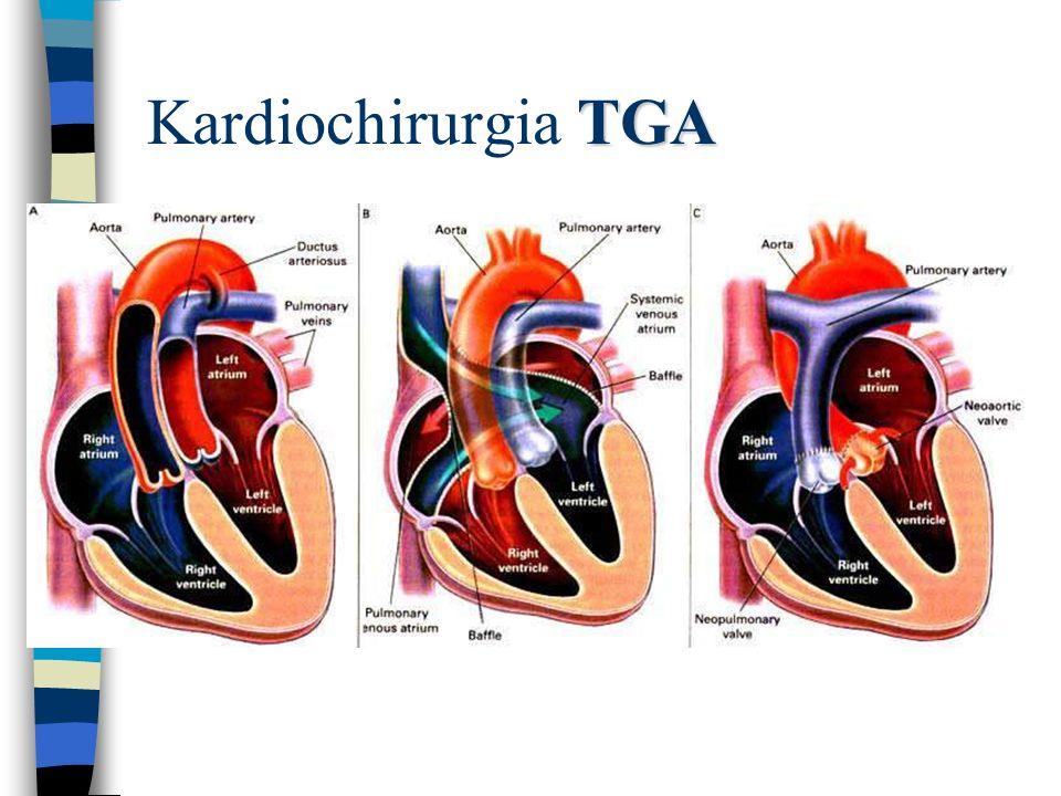 Kardiochirurgia TGA