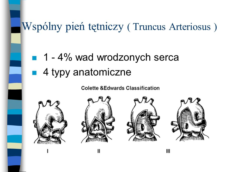 Wspólny pień tętniczy ( Truncus Arteriosus )