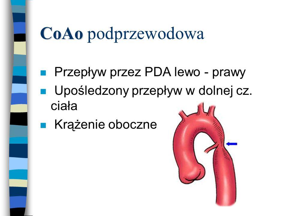 CoAo podprzewodowa Przepływ przez PDA lewo - prawy