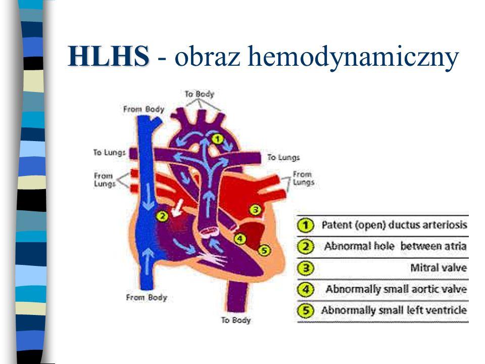 HLHS - obraz hemodynamiczny