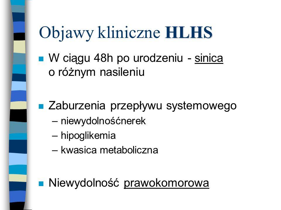 Objawy kliniczne HLHS W ciągu 48h po urodzeniu - sinica o różnym nasileniu. Zaburzenia przepływu systemowego.