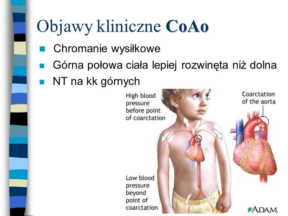 Objawy kliniczne CoAo Chromanie wysiłkowe