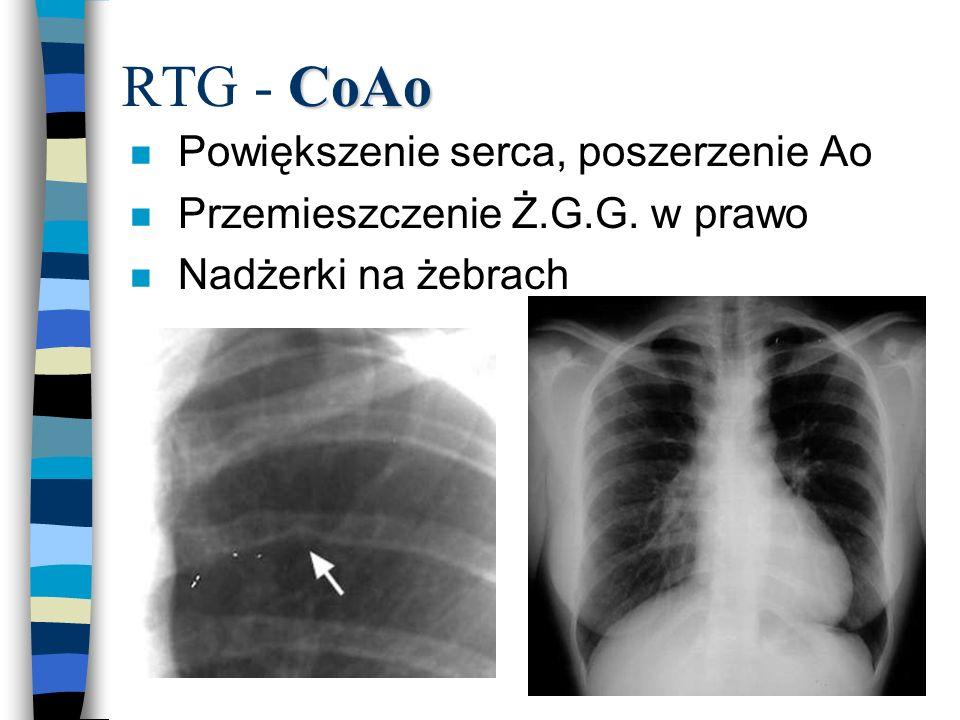 RTG - CoAo Powiększenie serca, poszerzenie Ao