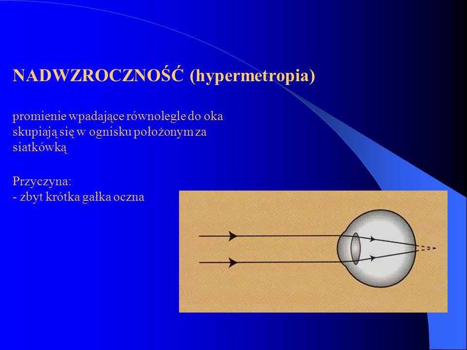 NADWZROCZNOŚĆ (hypermetropia)