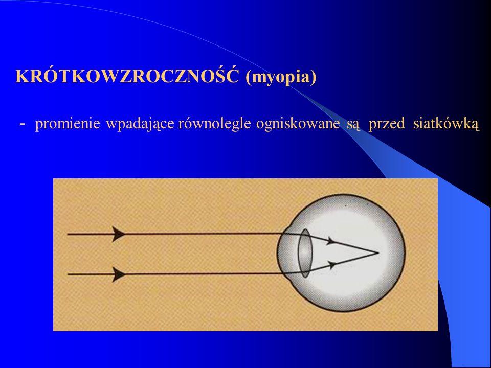 KRÓTKOWZROCZNOŚĆ (myopia)